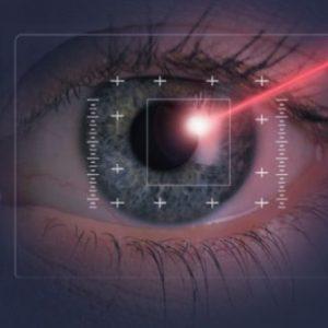 chirurgia-laser-miopia